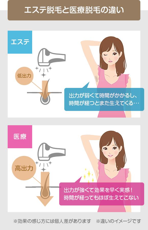 エミ 高い 医療 脱毛 銀座 ナル クリニック 効果 評判